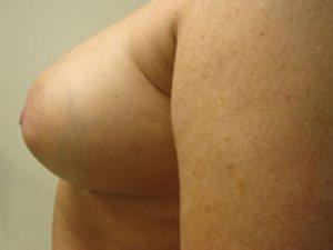 breast augmentation patient 2564