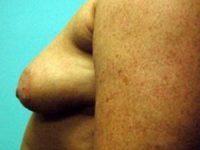 breast augmentation patient 2565