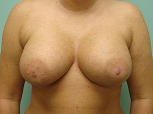 breast augmentation patient 2566
