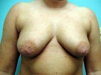 breast augmentation patient 2567