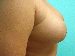 breast augmentation patient 2568