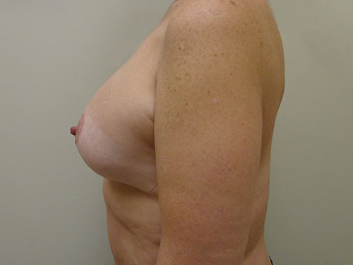 breast lift patient 2215