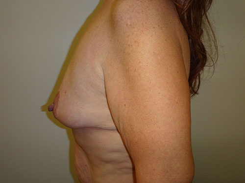 breast lift patient 2216