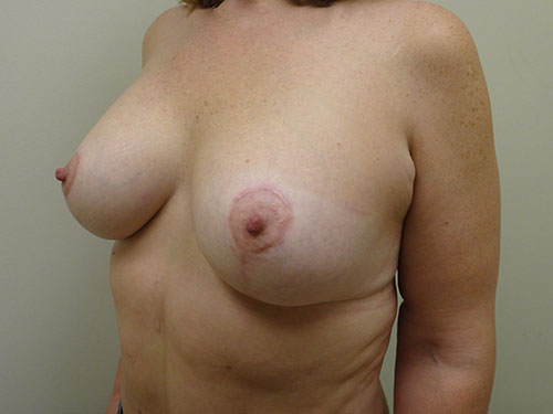 breast lift patient 2217
