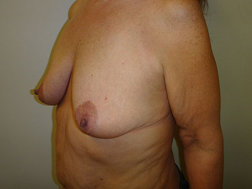 breast lift patient 2218