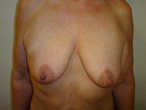 breast lift patient 2220