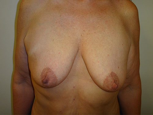 breast lift patient 2220