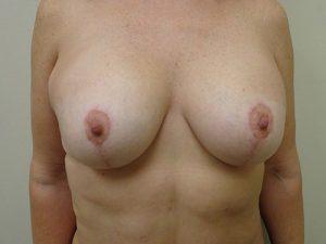 breast lift patient 2222