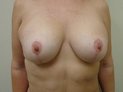 breast lift patient 2222