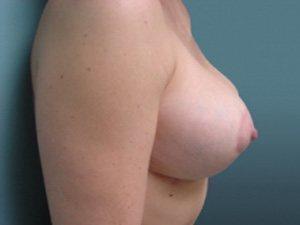 breast lift patient 2238