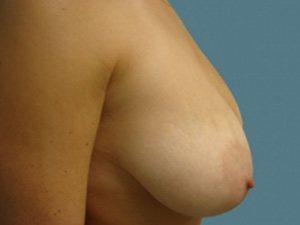 breast lift patient 2229