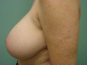 breast lift patient 2231
