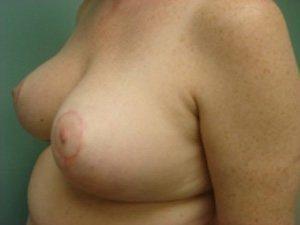 breast lift patient 2232