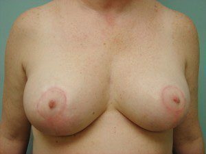 breast lift patient 2234