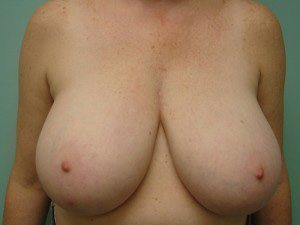 breast lift patient 2235