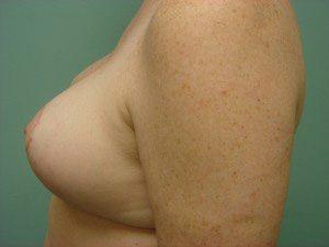 breast lift patient 2236