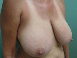 breast lift patient 2240