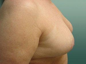 breast reduction patient 2570