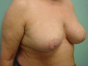 breast reduction patient 2572