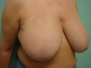 breast reduction patient 2573