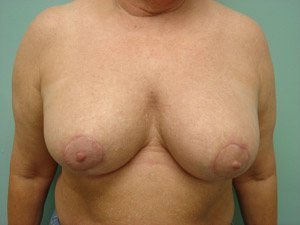 breast reduction patient 2574