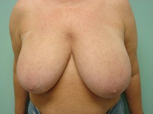 breast reduction patient 2575