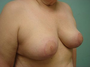 breast reduction patient 2577