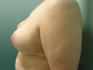 breast reduction patient 2579