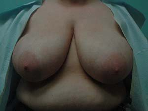 breast reduction patient 2582