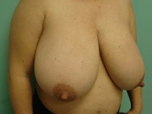 breast reduction patient 2586