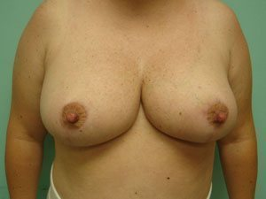 breast reduction patient 2587