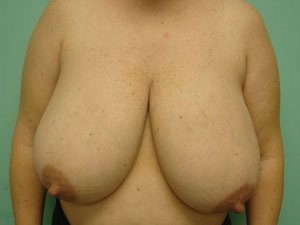breast reduction patient 2588