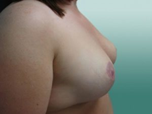 breast reduction patient 2591