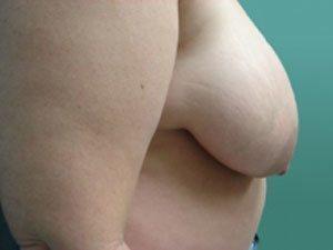 breast reduction patient 2592
