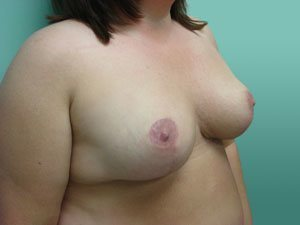 breast reduction patient 2593