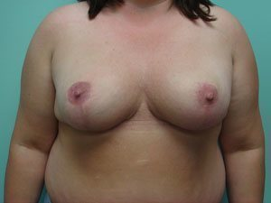 breast reduction patient 2595