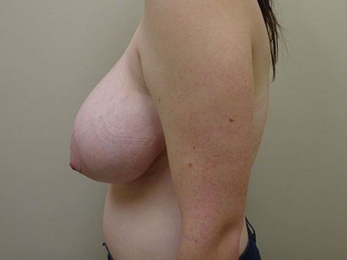 breast reduction patient 2598