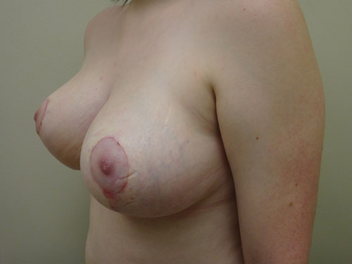 breast reduction patient 2599