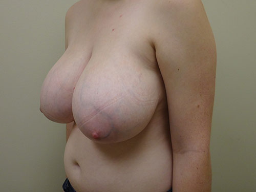 breast reduction patient 2600