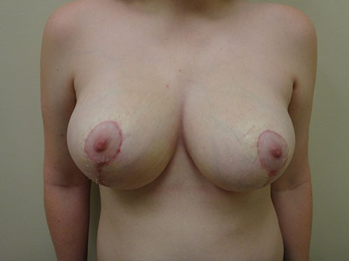 breast reduction patient 2601