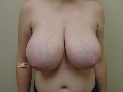 breast reduction patient 2602
