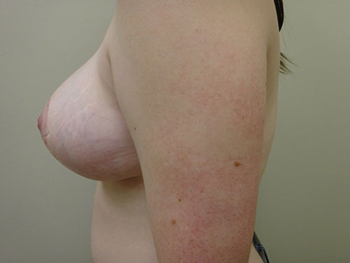 breast reduction patient 2603
