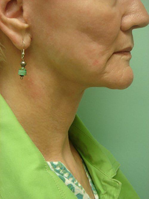 facelift patient 2126