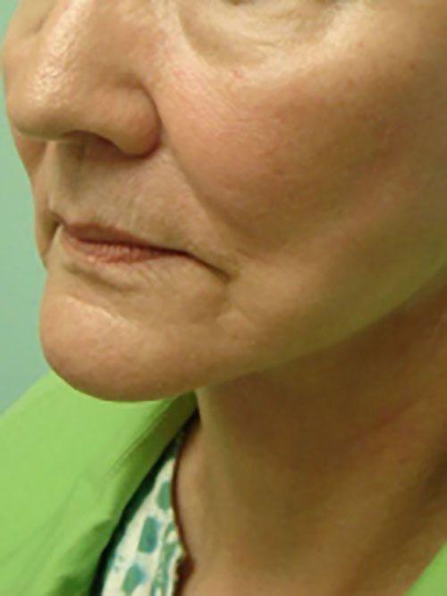 facelift patient 2128