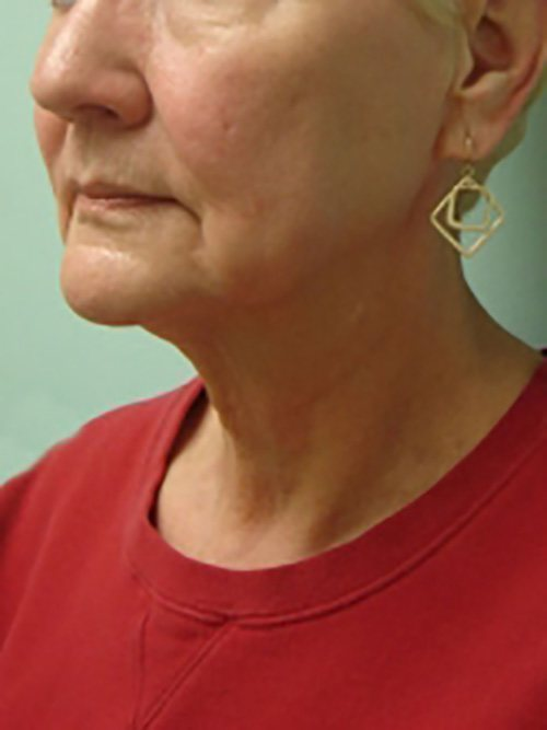 facelift patient 2129