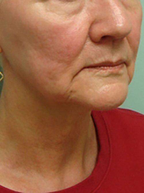 facelift patient 2131
