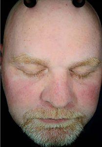 facial rejuvenation patient 2265
