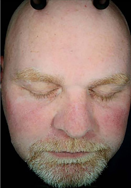 facial rejuvenation patient 2265