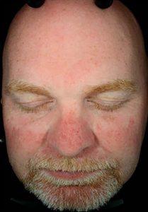 facial rejuvenation patient 2266