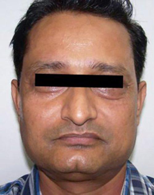 facial rejuvenation patient 2272